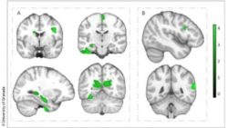 Image: diagram with six representations of the brain; Copyright: University of Granada