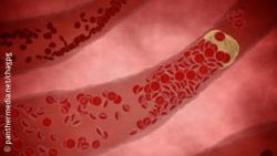 Image: Animation of a clogged artery; Copyright: panthermedia.net/chagpg