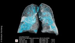 Image: CT image of the lungs with AI-supported automatic highlighting, quantification and measurement of anatomy and deviations; Copyright: Klinikum Nürnberg