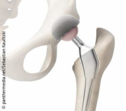 Image: Graphic of a hip endoprosthesis implanted between pelvis and thigh; Copyright: panthermedia.net/Sebastian Kaulitzki