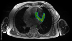 Image: MR image of a human torso with a part marked in green; Copyright: University Hospital Zurich