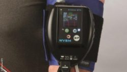 Image: Wireless vital signs monitor on an arm; Copyright: Athena GTX