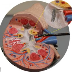 Image: Kidney model with grippers and the new adhesive; Copyright: Purenum GmbH