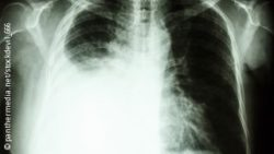 Image: X-ray image of a human's lung, partly filled with fluid; Copyright: panthermedia.net/stockdevil_666