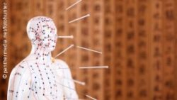 Image: A wooden doll with a painted networks of dots and acupuncture needles on it; Copyright: panthermedia.net/fotohunter
