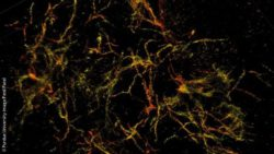 Image: 3D single molecule super-resolution images of the amyloid plaques; Copyright: Purdue University image/Fenil Patel