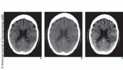 Image: three x-ray images of the brain; Copyright: American Journal of Roentgenology (AJR)
