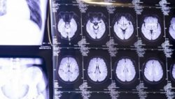Image: a brain image at MEDICA trade fair; Copyright: Messe Düsseldorf