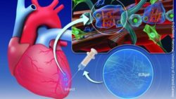 Image: Graphic depictions of heart and injectable hydrogel; Copyright: CÚRAM, National University of Ireland Galway