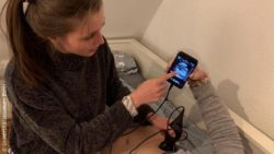 Image: young woman makes an ultrasound with the new system and shows patient the image on her smartphone; Copyright: Universitätsklinikum Bonn