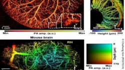 Image: photoacoustic images of microvessels of mice; Copyright: Chulhong Kim (POSTECH)