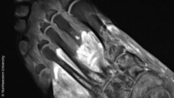 Image: MRI image of a foot; Copyright: Northwestern University