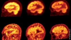 Image: PET imaging using the radiotracers FDG and florbetapir for analysis; Copyright: Penn Medicine
