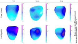 Image: Displacement comparison at the end-systolic frame and final frame; Copyright: WMG University of Warwick