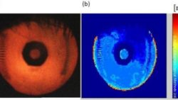 Image: images of the eye captured with an optical imaging system; Copyright: AdOM Advanced Optical Methods Ltd.