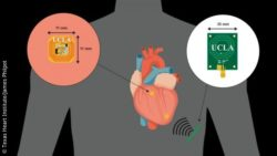 Image: Conceptual Illustration of the pacemaker; Copyright: Texas Heart Institute/James Philpot