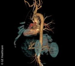 Image: DLIR image of the aorta; Copyright: GE Healthcare