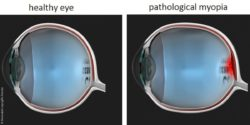 Image: right side: illustration of a healthy eye, left side: illustration of an enlarged myopic eye; Copyright: Universität Leipzig/M. Francke