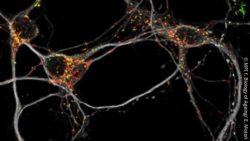 Image: Microscopy image of mouse neurons; Copyright: MPI f. Biology of Ageing/ E. Motori
